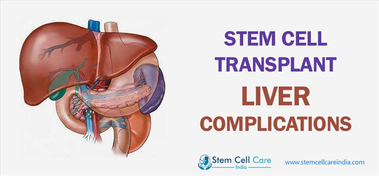 Stem Cell Transplant Liver Complications by rohangupta