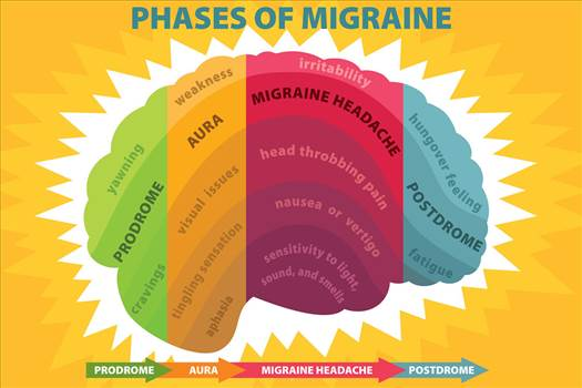 Migraine is a type of a headache the pain of that's described as habitual, throbbing and persistent that becomes unbearable for the those who enjoy it. Visit More- https://tattoomagz.com/migraine-cure/
