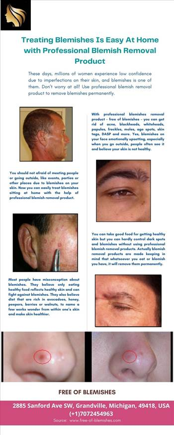 Treating Blemishes Is Easy At Home with Professional Blemish Removal Product.jpg by freeofblemishesusa