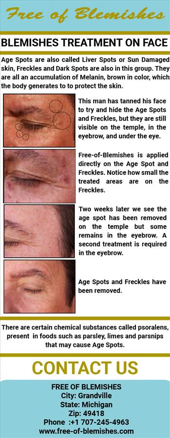 Blemishes treatment on face by freeofblemishes