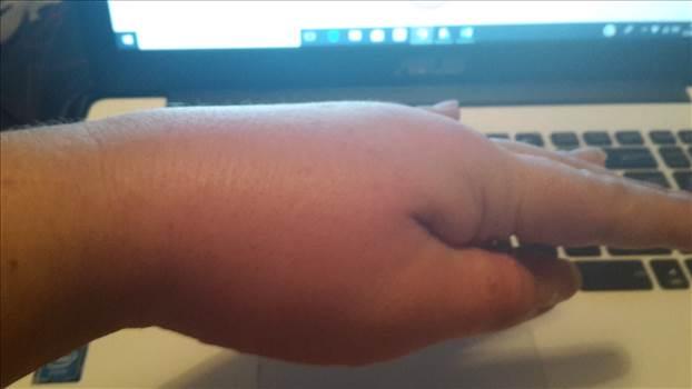 swelling.jpg -