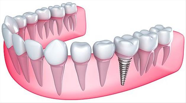 Dental Implants Waco TX by Waco Family Dentistry