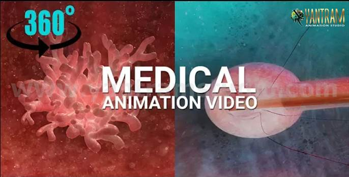 Medical-Animation-virtual-reality-studio-interactive-video.png by yantramstudio