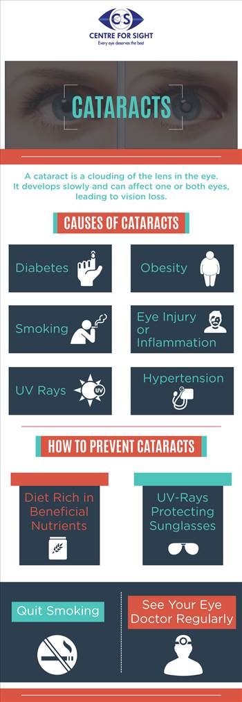 Cataracts - A cataract is clouding of the lens in the eye. It develops slowly and can affect one or both eyes, leading to vision loss.\r\n\r\nhttp://www.centreforsight.net/