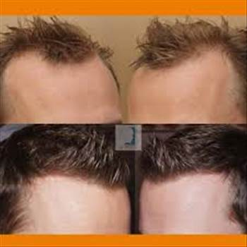 Hair Transplant Repair Bodygrafts.jpg by FueHlc