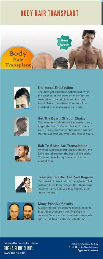 Hair Transplant Ankara.jpg by FueHlc