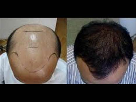 Haartransplantation Korrektur.jpg by FueHlc